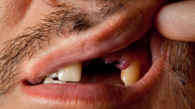 Man's missing teeth