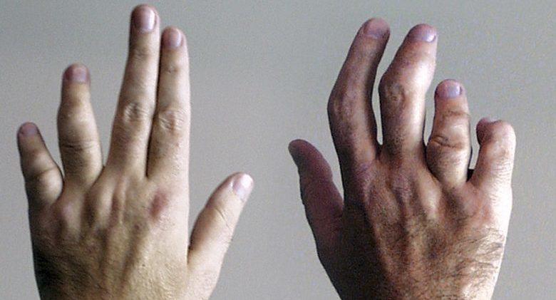 OMG! Do You Have Psoriatic Arthritis? \u2013 Page 8 \u2013 Life\u0027d